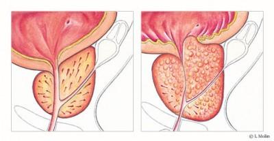 medicin prostata
